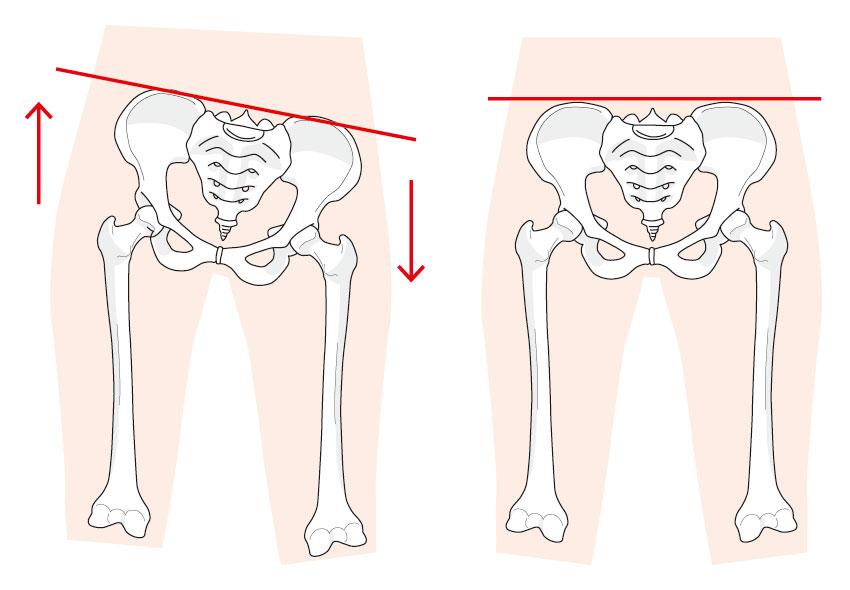 骨盤の歪みと正常図